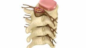 intervertebral prolapse för diskett