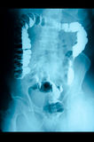 Intestinal abdominal xray Stock Photography