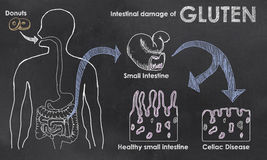 Intestinal Damage of Gluten. On a Blackboard Royalty Free Stock Image
