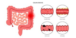 Free Intestines Diseases Concept Stock Photography - 225292672