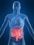 Intestines inflammation Stock Photo