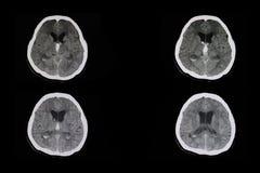 Intracerebral Blutung lizenzfreies stockfoto