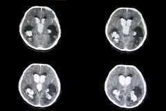 Intracerebral Blutung CT-Scans stockfotografie