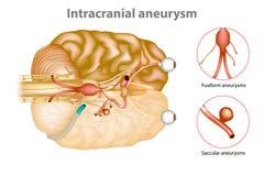 Intracranial aneurysm eller hjärnaneurysm royaltyfri illustrationer