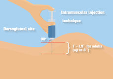 Intramuscular injection technique vector illustration. Technique of intramuscular route of administration Royalty Free Stock Image
