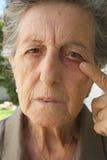 Intraocular cudzoziemski ciało wchodzić do oko stara kobieta obrazy royalty free