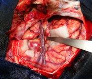 Hjärnkirurgi för en jätte- aneurysm arkivfoto