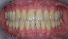 Intraoral photo after braces removal Royalty Free Stock Photo
