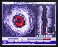 Intravascular ultrasound study. Stock Photos