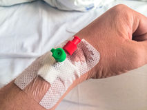 Accident Intravenous cannula, Venflon Stock Photo