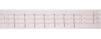 Investigação médica electrocardiogram Isolado na cor branca fotos de stock royalty free