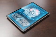 Investigación moderna del cerebro Imagen de archivo libre de regalías