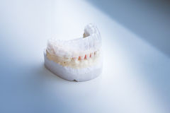 Invisalign, invisible plastic teeth aligner Stock Photography