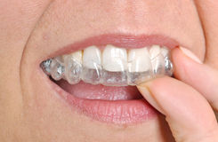 Invisible braces Royalty Free Stock Photos