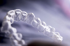 Invisible dental plastic braces Royalty Free Stock Photos