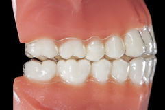 Invisible orthodontic aligner for treatments bruxism. Professional orthodontic equipment: invisible retainer Stock Images