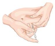 Inyección de la insulina en un vientre. Imágenes de archivo libres de regalías
