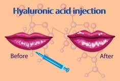 Inyección del ácido hialurónico, ejemplo del vector del procedimiento de los labios, Fotos de archivo libres de regalías