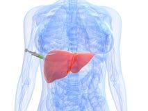 Inyección del cáncer de hígado - biopsia Imágenes de archivo libres de regalías