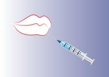 Inyección del labio y del botox o de los llenadores Imagenes de archivo