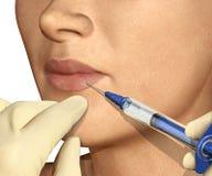 Inyección del realce del labio