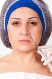 Inyecciones cosméticas de Botox del procedimiento fotos de archivo libres de regalías