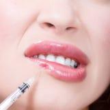 Inyecciones de Botox Imagen de archivo