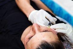 Inyecciones en la cara con procedimientos cosméticos Foto de archivo libre de regalías