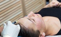Inyecciones en la cara con procedimientos cosméticos Imagenes de archivo