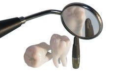 inympar tänder Arkivfoto