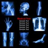 Inzameling van een Röntgenstraaldeel van mens stock foto's