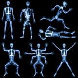 Inzameling van menselijk skelet royalty-vrije stock foto