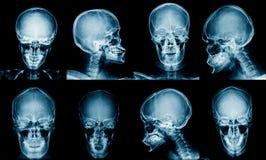 Inzamelings x-ray beeld stock afbeelding
