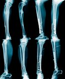 Inzamelings x-ray beeld royalty-vrije stock afbeelding