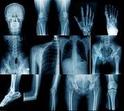 Inzamelings x-ray beeld stock fotografie