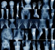Inzamelings x-ray beeld stock afbeeldingen