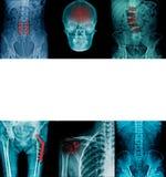 Inzamelings x-ray beeld in blauwe toon royalty-vrije stock afbeeldingen