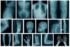 Inzamelings x-ray beeld in blauwe toon stock fotografie
