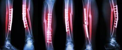 Inzamelingsbeeld van beenbreuk en operatie door interne bevestiging met plaat en schroef Onderbrekingsscheenbeen en fibula been Stock Afbeeldingen