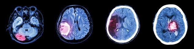 Inzamelingsct aftasten van hersenen en veelvoudige ziekte stock foto