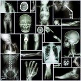 Inzamelingsröntgenstraal stock afbeeldingen