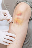 Iodine grid painting of knee bruise Stock Photos