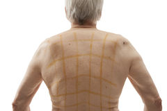 Iodine net on patient back Stock Photography