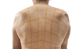 Iodine net on patient back Stock Images