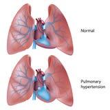 Ipertensione polmonare Immagini Stock