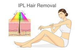 Ipl-ljus för hårborttagning på hudlagret och skönhetkvinnan som trycker på hennes hud Fotografering för Bildbyråer
