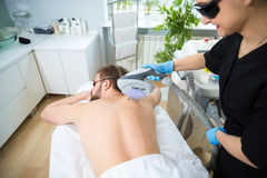 IPL therapy at men`s back Royalty Free Stock Photos