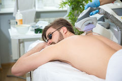 IPL therapy at men`s back Royalty Free Stock Images