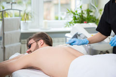 IPL therapy at men`s back Stock Images