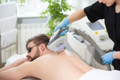 IPL therapy at men`s back Stock Photos